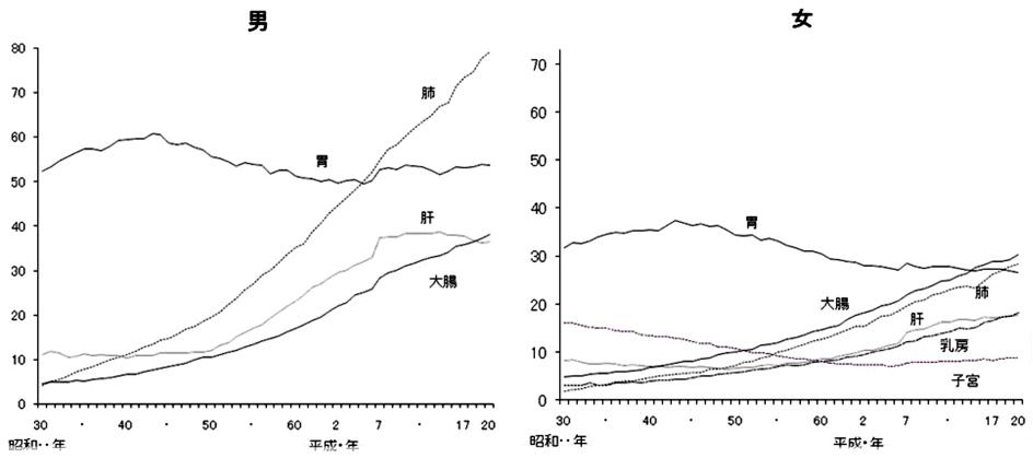 日本人の死因の第一位は悪性腫瘍(がん)